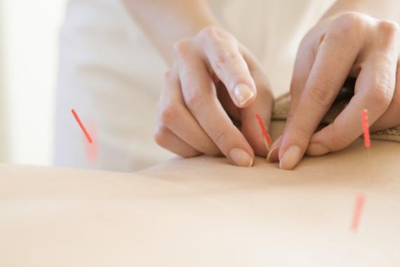 Eine Person in weiß sticht Akupunkturnadeln in einen Ruecken