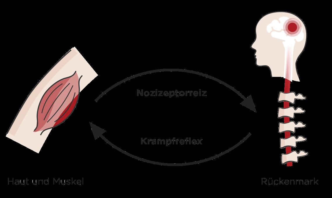 Illustration zeigt den Kreislauf eines schmerzenden Muskels, diese Information wird vom zum Rueckenmark zum Gehirn weitergeben